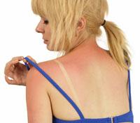 Lavender Sunburn Relief